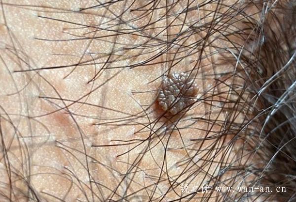 锐之优健管师分享,典型菜花状尖锐湿疣皮损案例