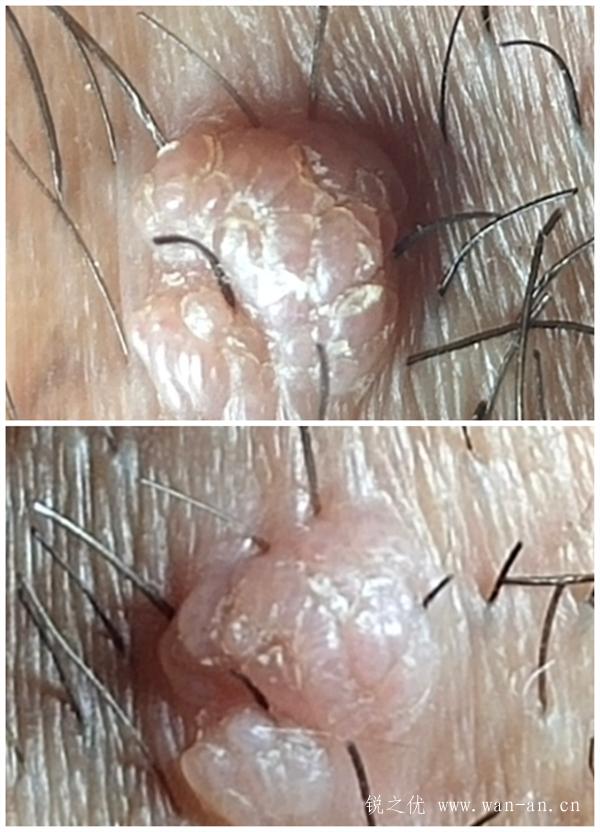 锐之优健管师分享病毒疣的疣体症状