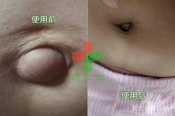 女性产后疝气,外用锐之优缩疝液与疝气贴后,肚脐已经不凸出